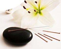 Kompetenz Akupunktur